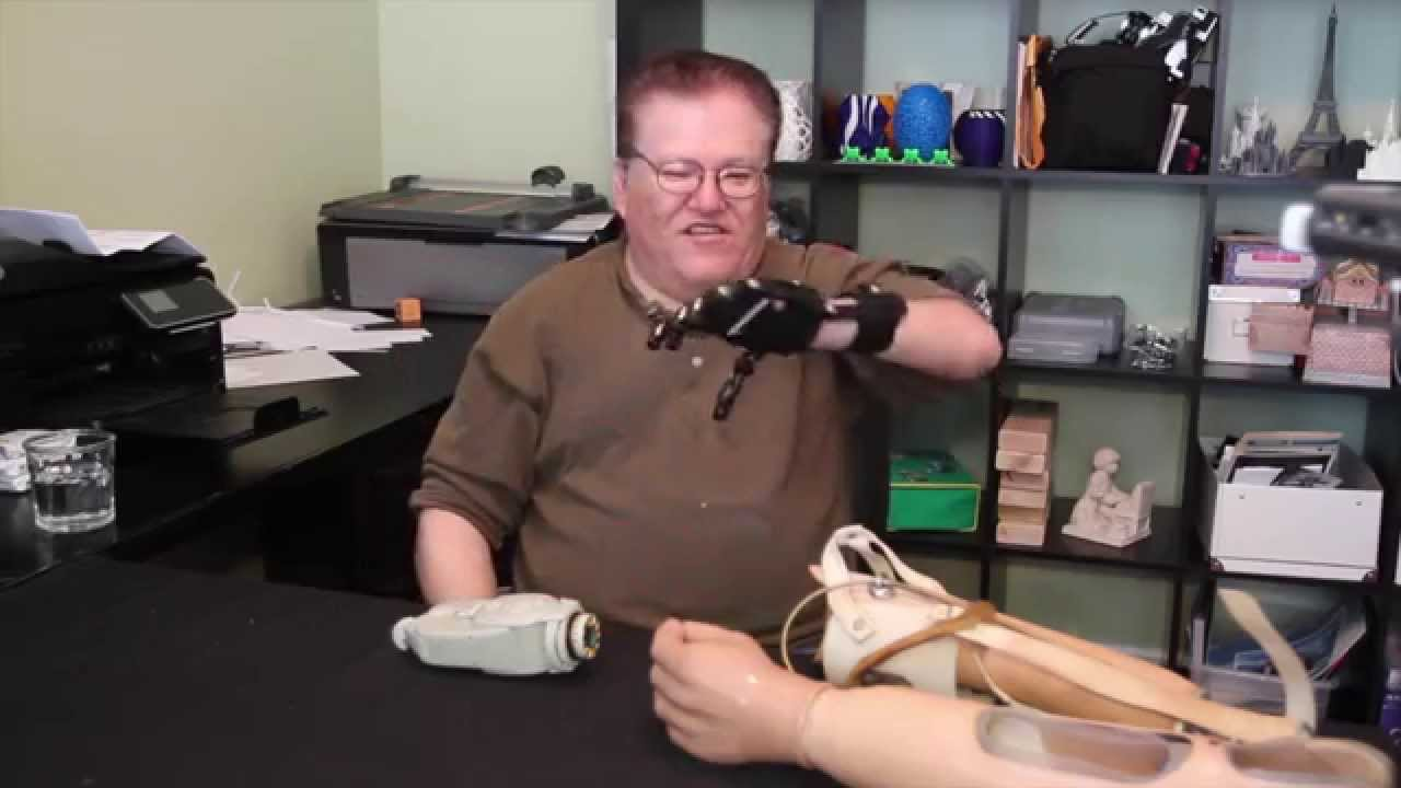 Man Compares $50 3D Printed Cyborg Beast To His $42,000 Prosthetic Hand